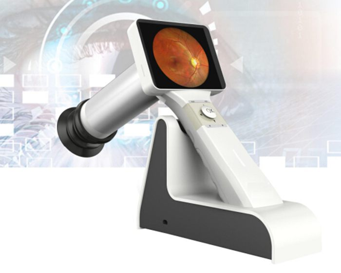 Portable Digital Fundus Camera (Non-Mydriatic)